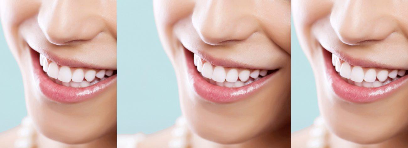 Stylsmile teeth whitener